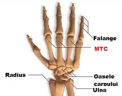 Umflarea articulațiilor degetelor după o fractură. Dureri articulare articulații cot și umăr