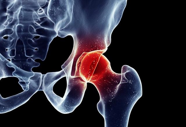 unde și cum doare articulația șoldului