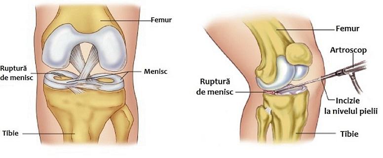 tipuri de artroză